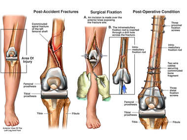 Traumatic Fracture of the Femur with Surgical Repair