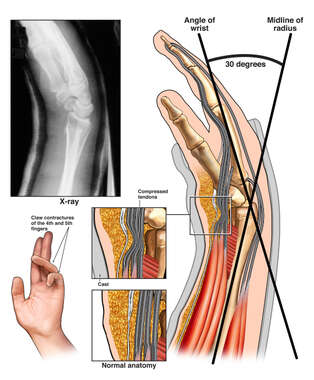 Closed Reduction and Casting of the Left Wrist and Median Nerve Compression