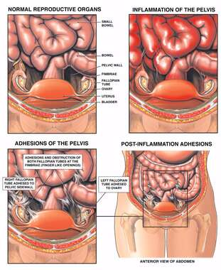 Inflammation and Adhesions of the Pelvis with Obstruction of the Fallopian Tubes
