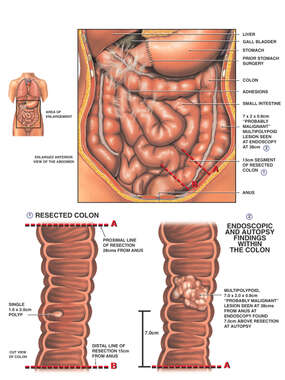 Abdominal Contents with Colon Cancer and Resection Sites