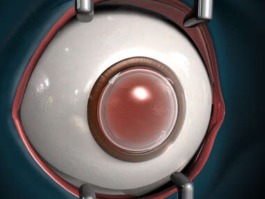 Immediate Post-Operative View of Artificial Lens