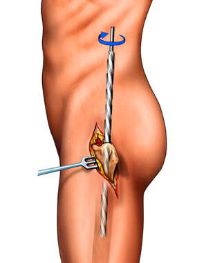 Intramedullary Rod: Femur Fixation