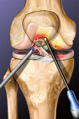 Arthroscopic Knee Debridement with Electro Thermal Wand