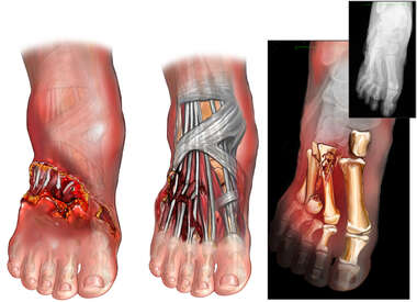 Crush Injuries of the Right Foot