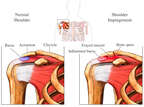Normal Anatomy and Shoulder Impingement