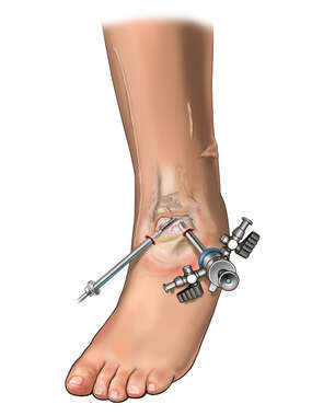 Arthroscopy of Ankle Joint