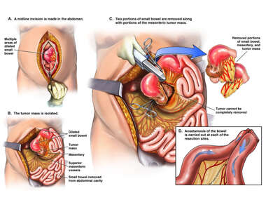 Exploratory Laparotomy with Resection of Small Bowel and Mesenteric Tumor