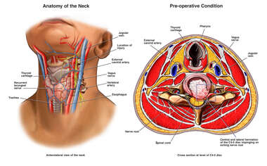 Location of Cervical Disk Injury