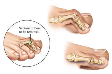 Hammer Toe: Surgical Repair