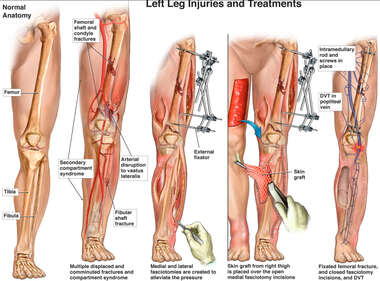 Left Leg Injuries and Treatments