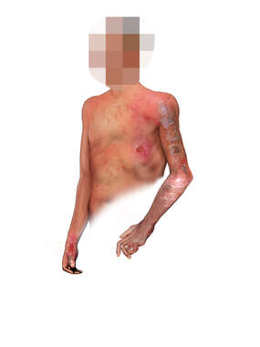 Anterolateral View of Male Figure with Chronic Leprosy