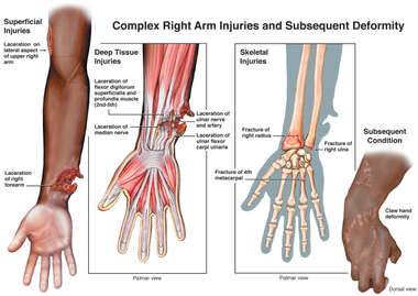 Complex Right Arm Injuries and Subsequent Deformity