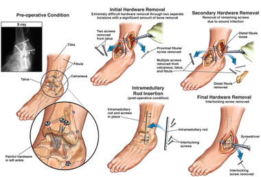 Left Foot and Ankle with Multiple Surgical Hardware Removal Procedures