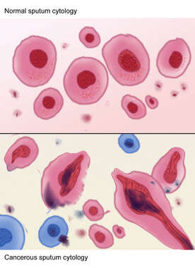 Cancerous and Normal Cells in Sputum