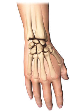 Dorsal View of Wrist Fracture Pinning