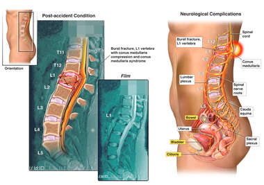 Lumbar Spine Fracture with Resulting Neurological Complications