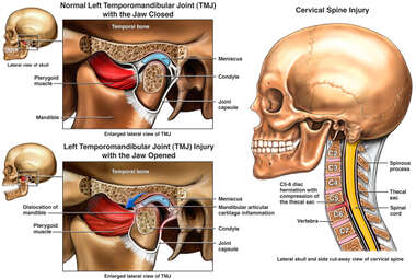 Left Temporomandibular Joint Injury