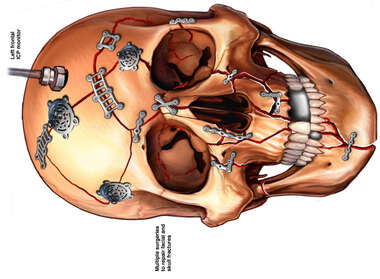 Facial and Skull Fractures