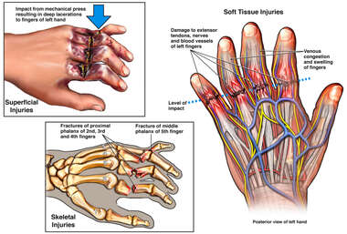 Impact Injury to Left Hand