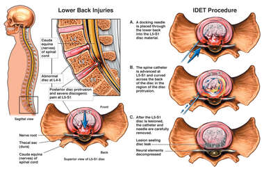 Intradiscal Electrothermal Therapy (IDET)