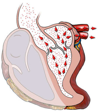 Back Flow Through the Mitral Valve