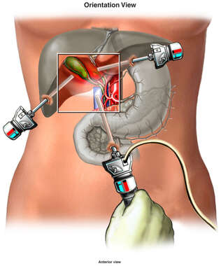 Surgical Removal of Gall Bladder with Damage to the Common Bile Duct