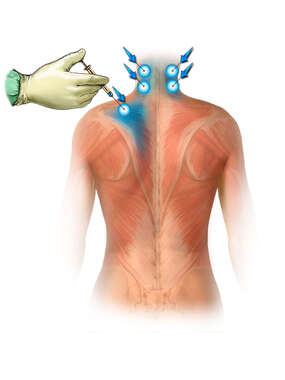 Cervical Epidural Injections