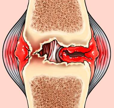 Synovial Joint with Inflammation, Osteoarthritis