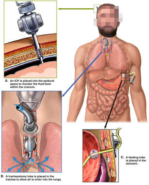 Placement of Intracranial Pressure (ICP) Monitor, Tracheostomy and Feeding Tubes