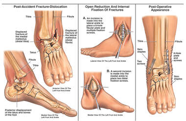 Bimalleolar Left Ankle Fracture Dislocation with Surgical Fixation