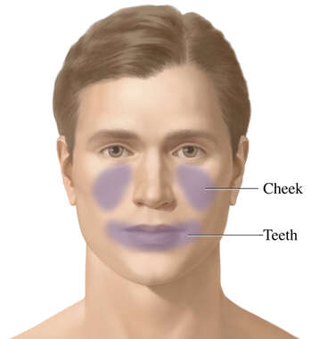 Maxillary Sinusitis (Associated Regions of Pain)