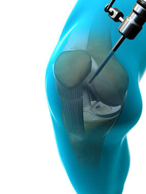 Arthroscopic Knee Insufflation