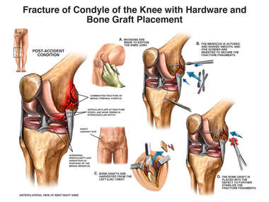 Fracture of Condyle of the Knee with Hardware and Bone Graft Placement