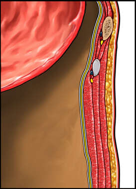 Cut-section of the Stomach and Abdominal Wall