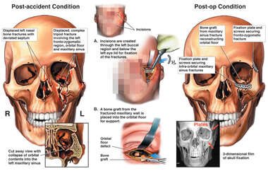 Post-accident Facial Fractures with Surgical Reconstruction