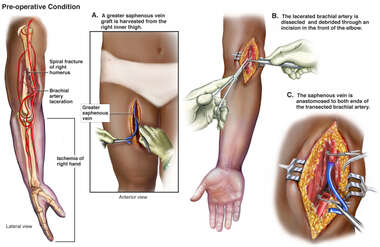 Distal Humerus Fracture and Artery Damage with Vascular Repair
