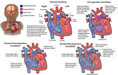 Correct vs. Incorrect Repair of Congenital Heart Defects