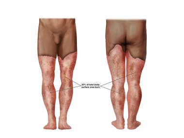 Chemical Burns to the Bilateral Lower Extremities