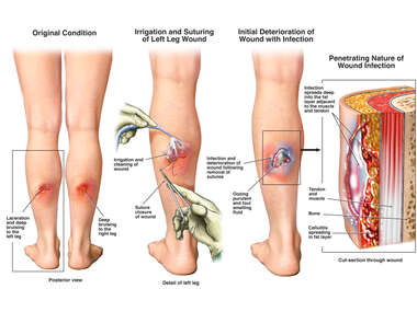 Bilateral Lower Leg Wounds with Irrigation, Debridement and Subsequent Infection