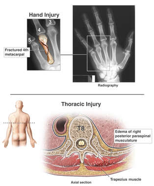 Accident-related Injuries to the Hand and Thoracic Spine