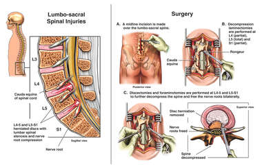L4-5 and L5-S1 Herniated Disc with Subsequent Laminectomies, Foraminotomies and Discectomies