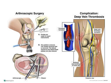 Right Knee Arthroscopic Surgery and Complication: Deep Vein Thrombosis