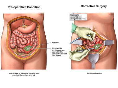 Retained Surgical Sponge with Intra-abdominal Abscess and Surgical Repairs