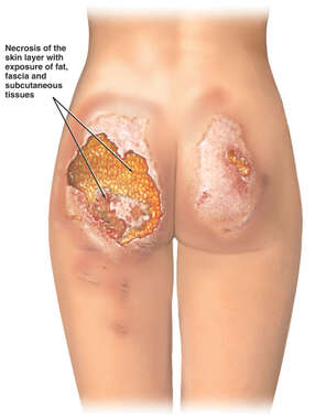 Necrosis of the Buttocks with Exposed Adipose Tissue (Fat) and Fascia