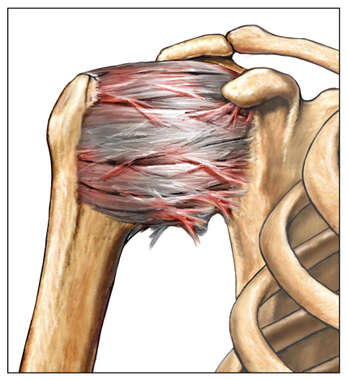 Adhesive Capsulitis of the Shoulder