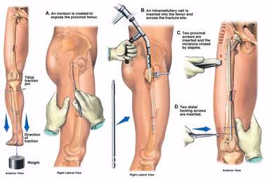 Right Leg Surgical Fixation of Femur Fracture with Placement of Intramedullary Rod