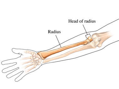 The Head of the Radius