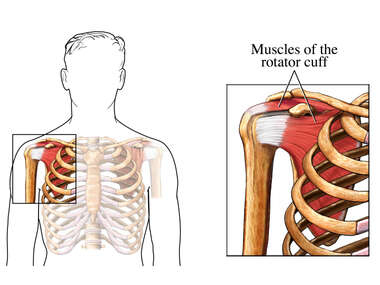 The Rotator Cuff: Anterior (Front) View