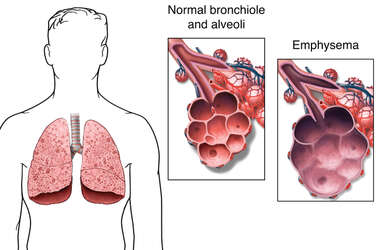Normal Lung vs. Emphysemic Lung