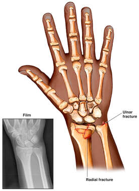 Post-accident Wrist Fractures, Radius and Ulnar Styloid Process
